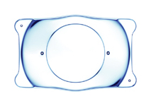 Implantable Contact Lens (ICL)